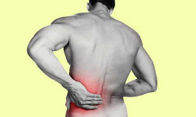 Препарат применяется при боли в спине