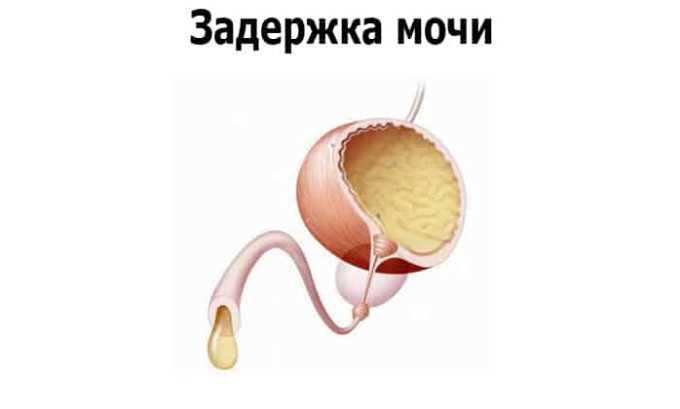 Запрещен прием при патологии мочевыводящих путей с острой задержкой оттока мочи