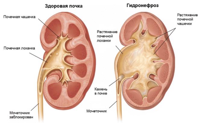 Препарат для восстановления функций почек применяют при гидронефрозе