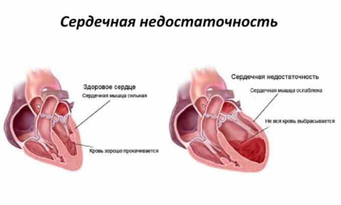 Препарат не применяется при сердечной недостаточности