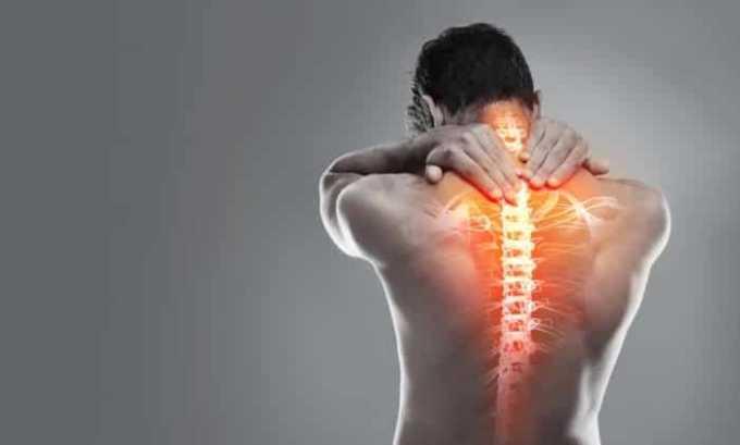 Лекарство назначают при боли в позвоночнике