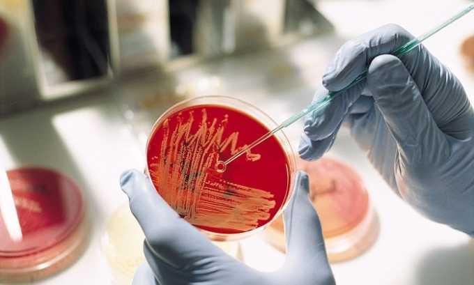 Бактериологический посев помогает обнаружить возбудителя патологии