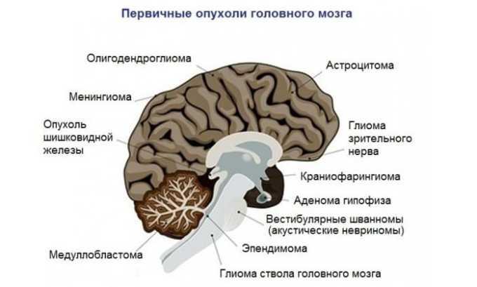 Применение лекарственного средства не может осуществляться при обнаружении метастазов в головном мозге