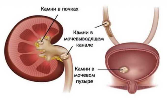 Мочекаменная болезнь провоцирует дриблинг