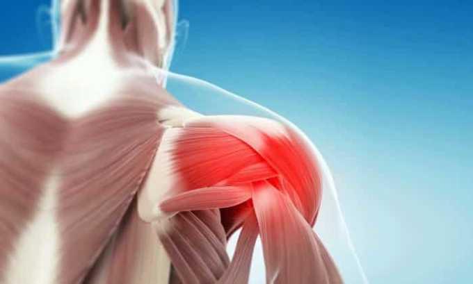 Лекарственное средство устраняет мышечные боли