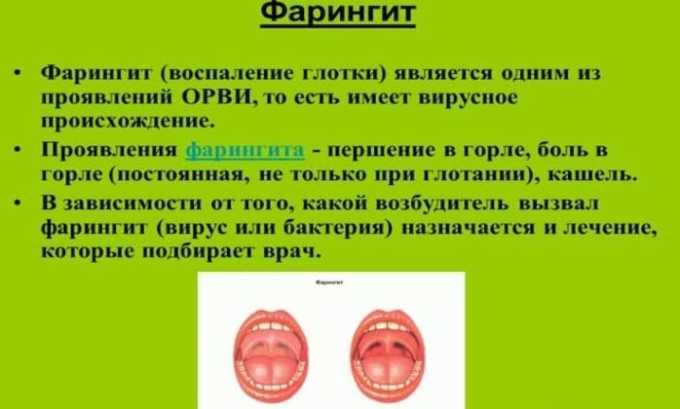Смесь Диоксидина и Дексаметазона используют в качестве капель, а также для проведения ингаляций при фарингите