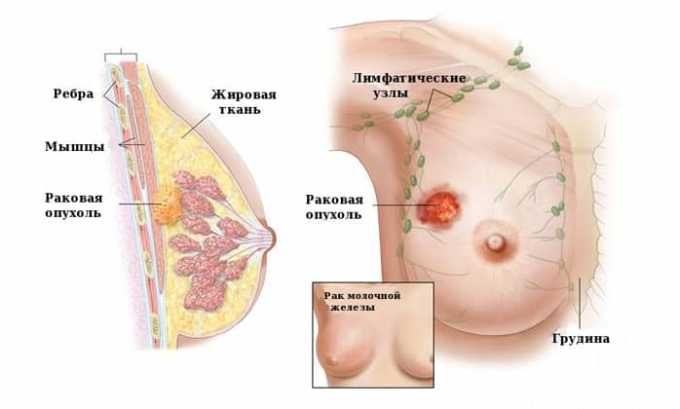 При раке молочной железы применяют Винкристин