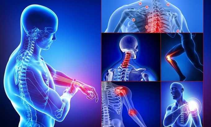 Офлоксацин 200 может спровоцировать опорно-двигательные расстройства (воспаление сухожилий, мышечные боли, болезненность в суставах)