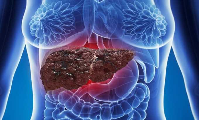 Ибупрофен-Белмед используют при тяжелой форме печеночной недостаточности