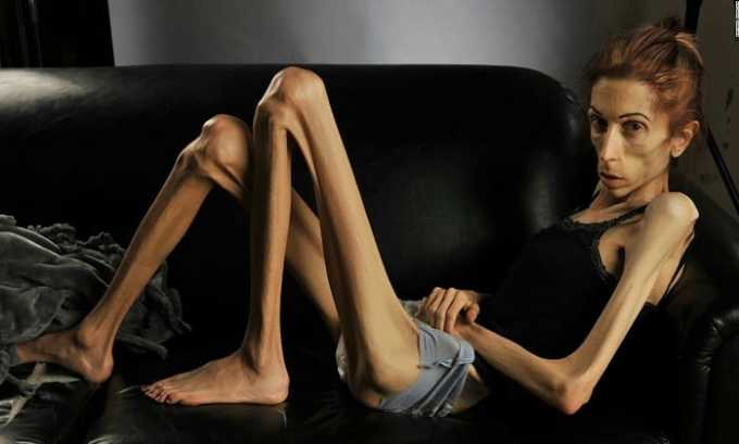Диклофенак Ретард может привести к анорексии