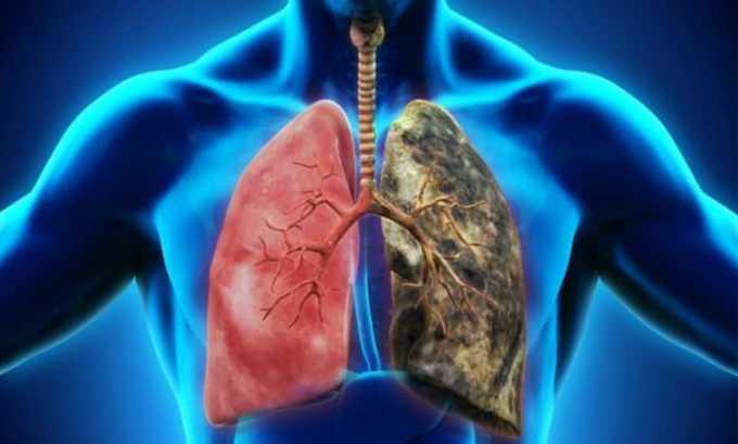 Препарат противопоказан при декомпенсированных болезнях легких
