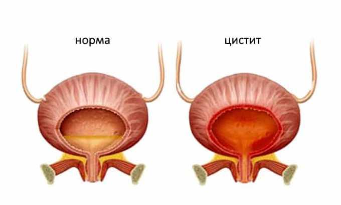 Препарат применяется для лечения инфекционных мочеполовых инфекций (цистит)