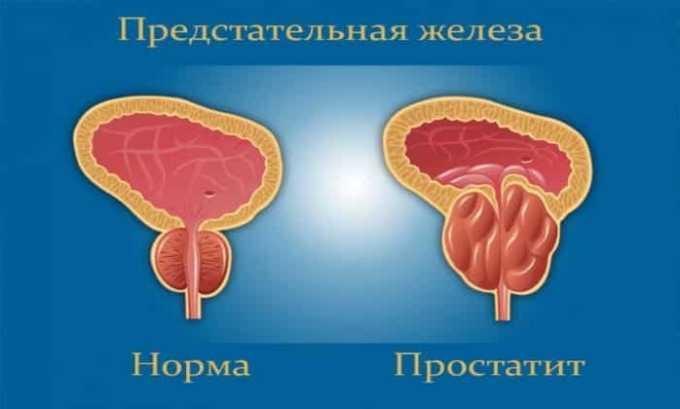 Медикамент показан при простатите