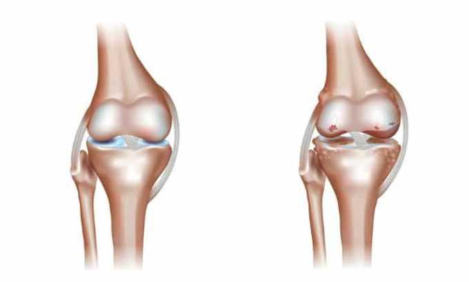 Врачи назначают препарат пациентам при остеоартрите