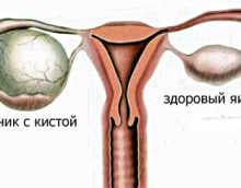 Лютеиновая киста яичников — какие действия предпринимать?