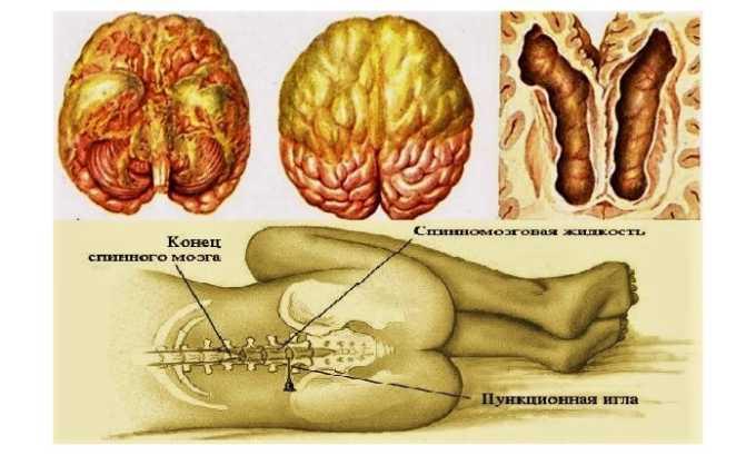 Цефуроксим назначают при воспалении оболочек спинного и головного мозга