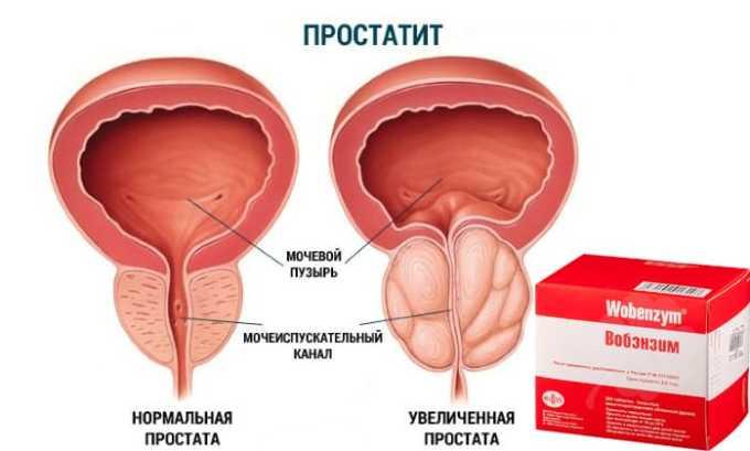 Вобэнзим применяют в урологии при лечении хронических и острых заболеваний, таких как простатит и т.д