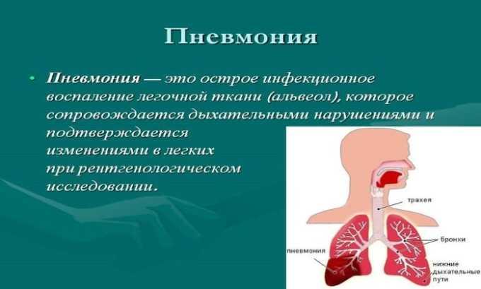 Препарат назначают при пневмонии