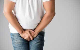 Причины, симптомы и лечение воспаления мочевого пузыря