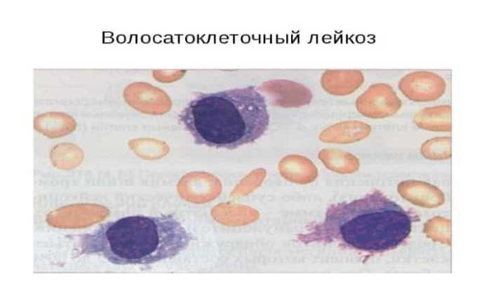 Препарат применяется при волосатоклеточном лейкозе