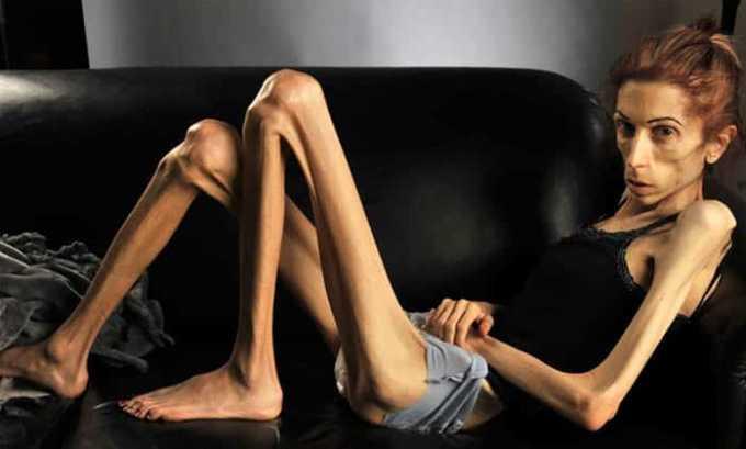 Медикамент используют в комплексном лечении анорексии