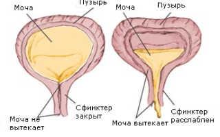 Как укрепить слабый мочевой пузырь?