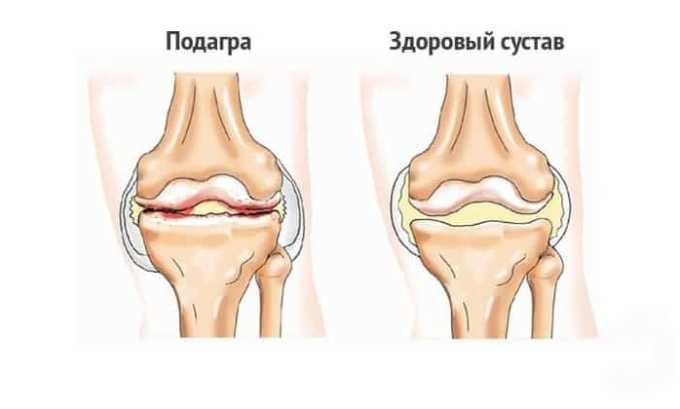 Препарат применяется при профилактике подагрических приступов