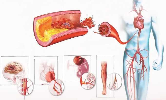 Показанием к применению препарата Метионин является атеросклеротическое поражение сосудов