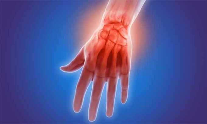 Препарат используют при артрите