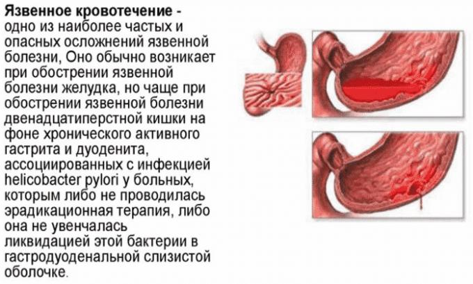 При передозировке средней и тяжелой степени могут возникать кишечные кровотечения