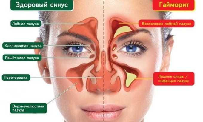 Назначают при инфекционных процессах, затронувшие нос (гайморит)