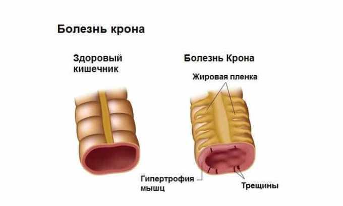 Средство применяется в комплексном лечении при болезни Крона