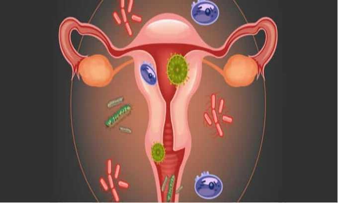 Лекарство назначают при инфекции гинекологического плана