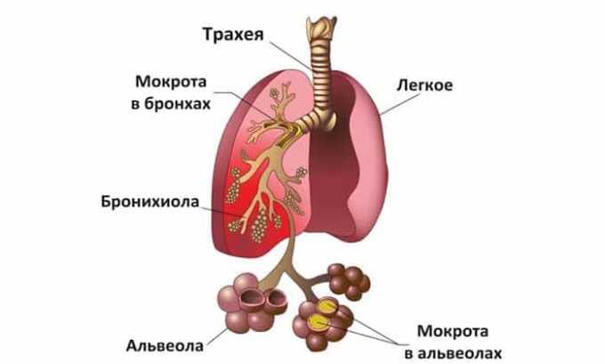 Ротацеф рекомендуется принимать при воспалении легких