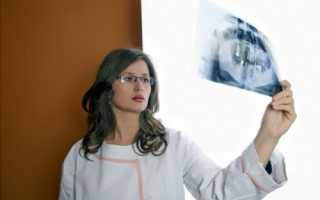 Амилоидоз почек — причины, симптомы, диагностика, лечение