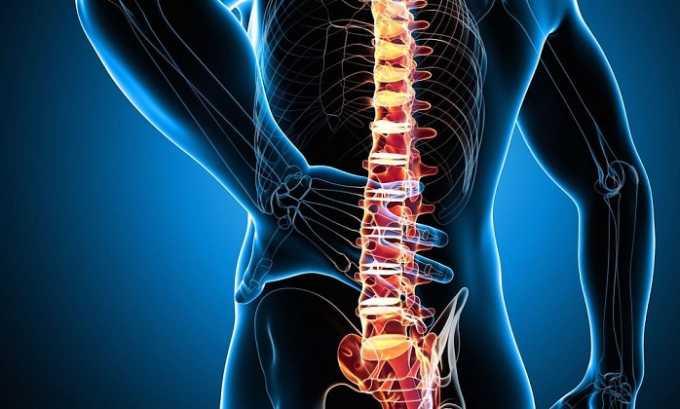 Препарат в виде инъекций назначается при воспалительных заболеваниях суставов позвоночника
