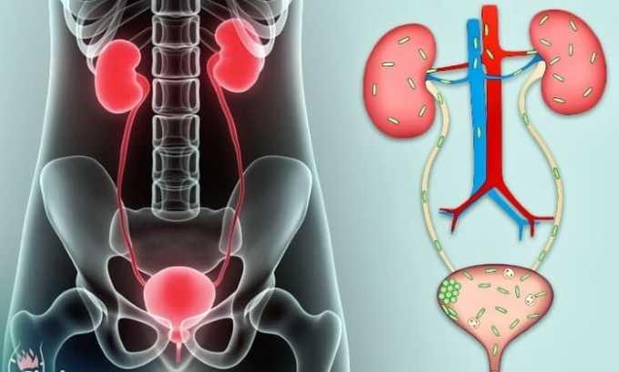 Препарат эффективен при инфекции мочеполовых органов
