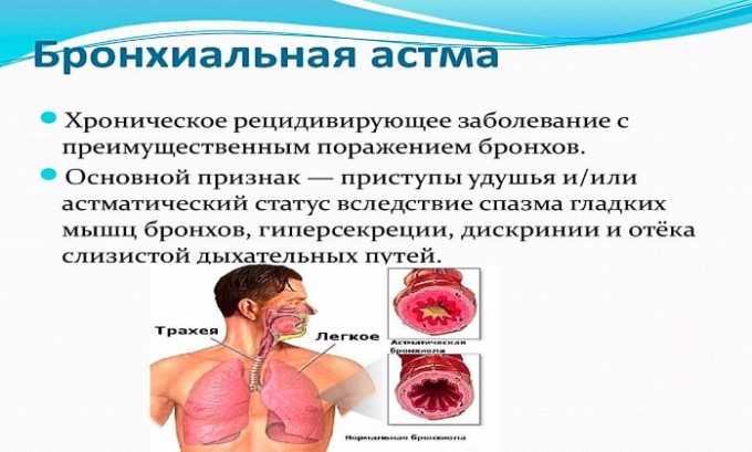 Суспензию для инъекций назначают при бронхиальной астме