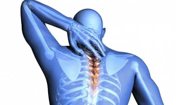 Нурофен 200 показан при невралгии