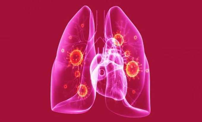 Нексавар может вызывать воспаление легких