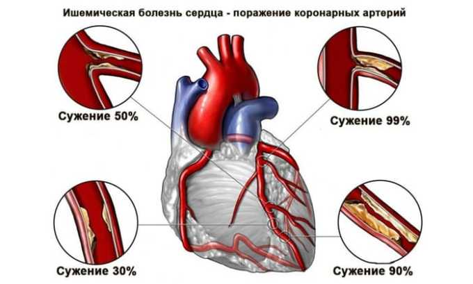 Лекарственное средство показано при ишемической болезни сердца