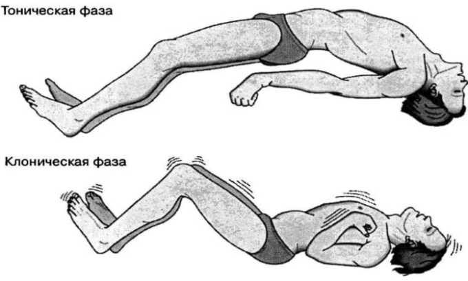 Лечение Бритомаром может вызывать судорожный синдром