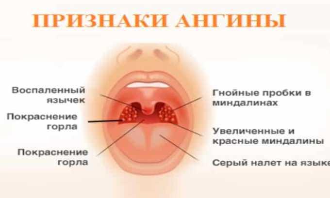 Применение Бензилпенициллина назначается при ангине