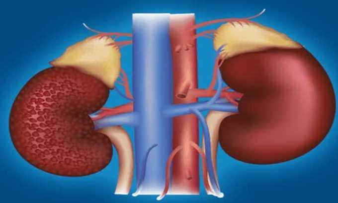 При использовании препарата возможно появление побочного эффекта в виде почечной недостаточности