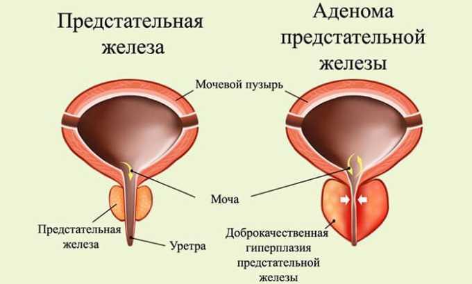 Причиной подтекания мочи после опорожнения являются опухоли в предстательном канале
