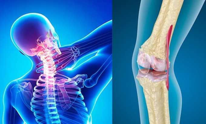 Патологии опорно-двигательного аппарата дегенеративного характера, в том числе остеоартроза, остеохондроза, лечат препаратом Диклофенак-Акрихин