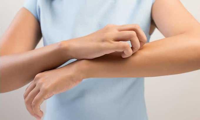 Зуд - один из побочных эффектов приема препарата
