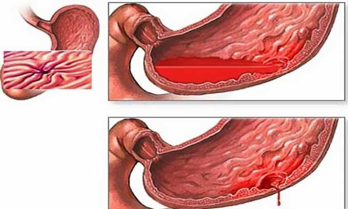 Ограничением к применению препарата является желудочно-кишечные кровотечения