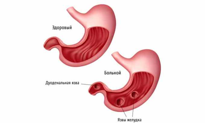 Препарат противопоказан при язвенной болезни желудка и двенадцатиперстной кишки