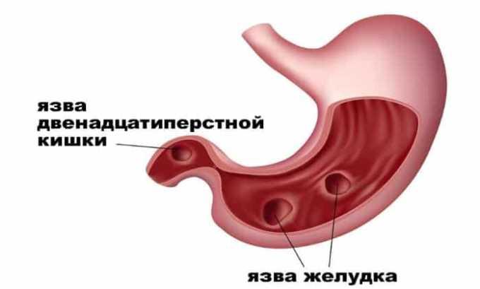 Инъекции и таблетки Гидрокортизона не назначают, если пациент страдает язвой желудка или кишечника